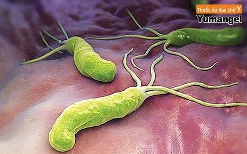 Vi khuẩn hp có chữa khỏi được không